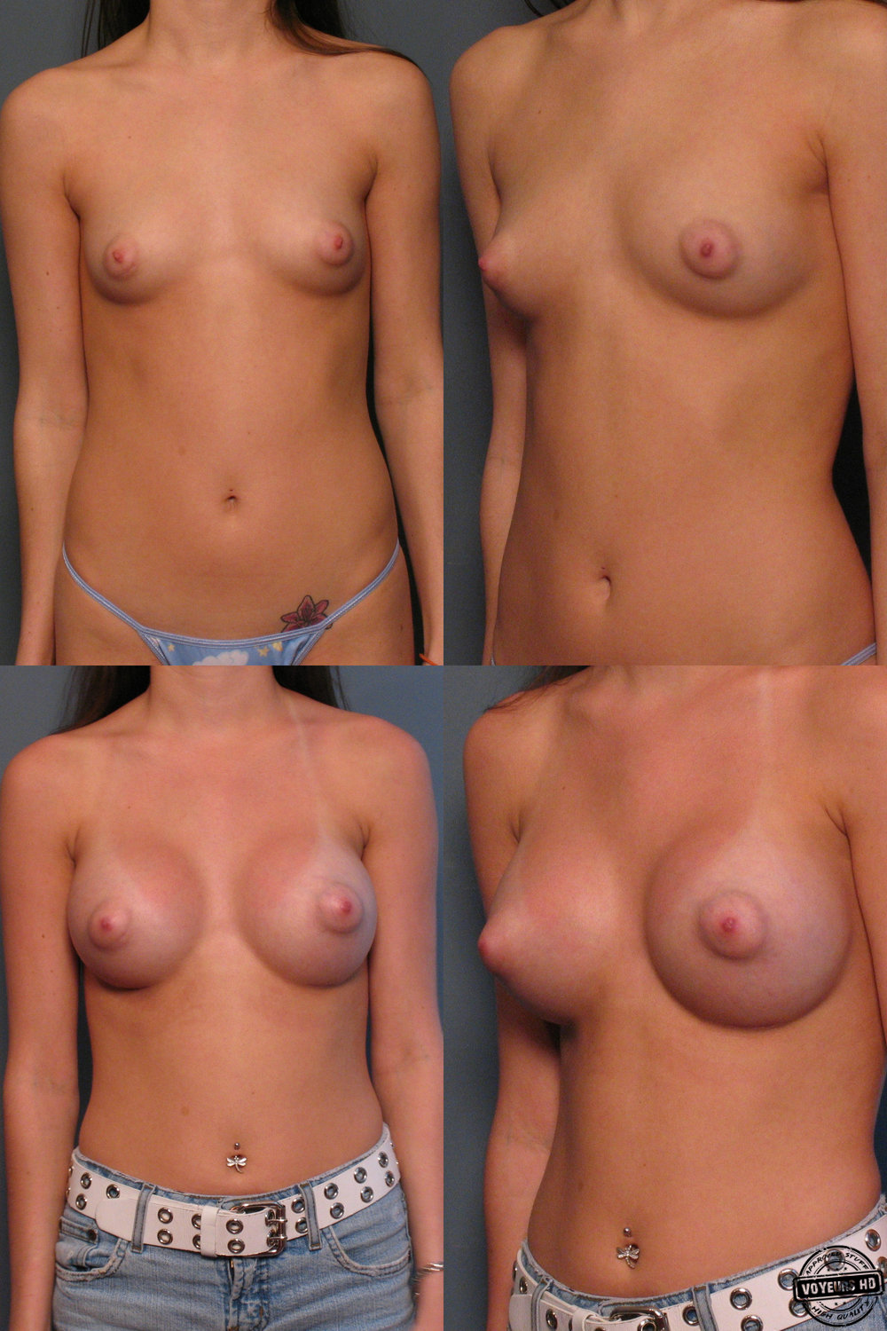 ca breast