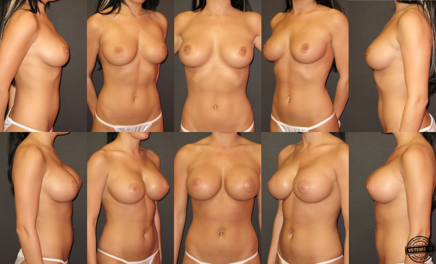 Boob job before and after nude